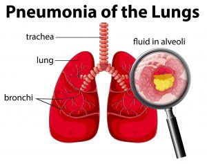All You Need To Know About Pneumonia