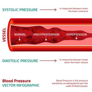 High Blood Pressure (HBP), What It Means And Who Can Get It